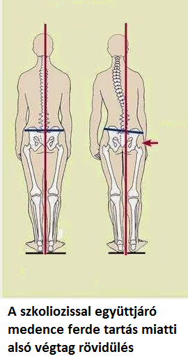 fájdalom a medence bal lábának ízületében)