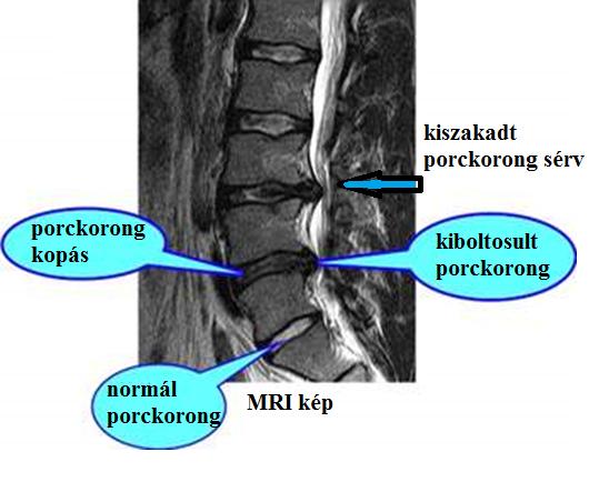 gerinc artrózis kezelése elecampane ízületi kezelés